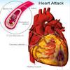 ह्रदय रोग : कारण और निवारण